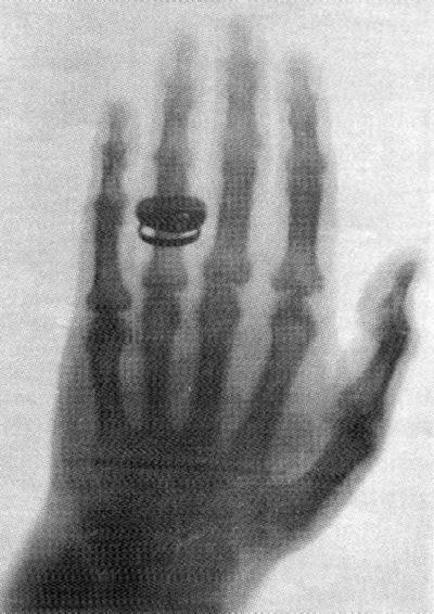 Первая рентгенограмма
