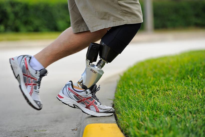 биомеханический протез ноги